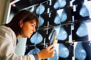 Лечение рака груди в Израиле в медицинском центре Imedical