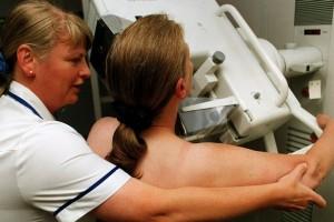 Протоковая карцинома - не всем нужна радиотерапия