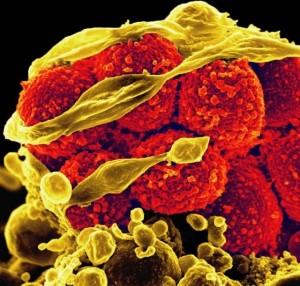 Инновационное изобретение израильских ученых против устойчивости к антибиотикам